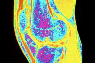 Prolotherapy may be used to treat osteoarthritis of the knee