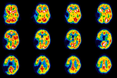 Stroke: PET scan shows brain of a stroke patient (photo: SPL)