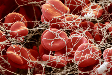 Blood clot: oral demonstrated efficacy and convenience (Photograph: SPL)
