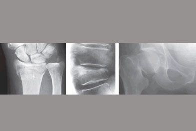 Typical sites of osteoporotic fracture: wrist (left), spine (centre) and hip (right)