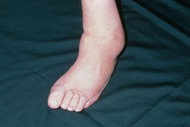 Deformity to foot and ankle due to neuropathy