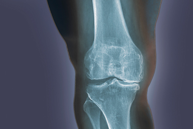 Osteoarthritis of the knee: study suggests methotrexate reduced synovitis