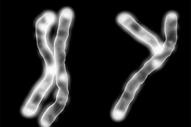 Of the X and Y chromosome only the Y carries the heart disease risk from father to son (Photograph: SPL)