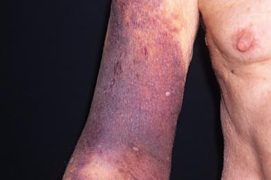 Bruising in the arm of an 80-year-old woman taking warfarin (Photograph: SPL)