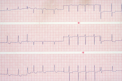 Electrocardiogram (EKG) depicting atrial fibrillation (Photo: SPL)