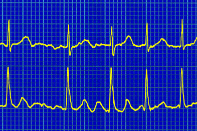 Electrocardiogram (ECG) of electrical activity in the heart in a case of auricular fibrillation (Photograph: SPL)