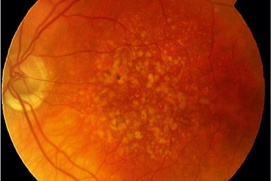 Fundus photograph showing drusen (yellow-coloured flecks)