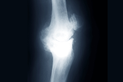 Osteoarthritis of the knee: studies failed to show any marked reduction in pain in patients taking glucosamine