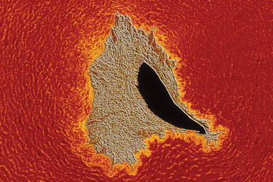 A microscope image of the black lumen of an atherosclerotic artery, narrowed by grey plaque (Photo: SPL)