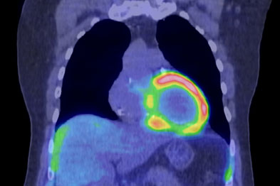 In cardiomyopathy the heart may be weakened and enlarged