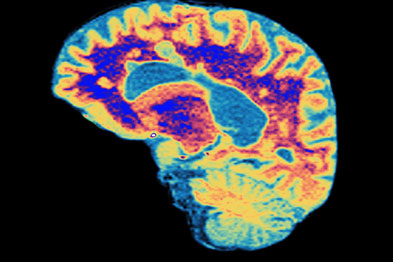 Brain scan depicting MS: oral treatment could have a 'major impact'