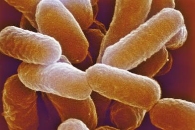 Bacteria reinfected mice despite antibiotic treatment (Photograph: Dr Kari Lounatmaa/SPL)