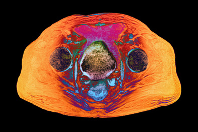 MRI scan of a 65-year-old patient with prostate cancer (Photograph: ZEPHYR/SCIENCE PHOTO LIBRARY)
