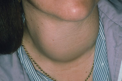 Thyrotoxic goitre: thyrotoxicosis may cause excessive sweating