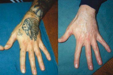 Before and after laser tatoo removal (photo: Lynton)