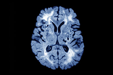 MRI of patient with CADASIL, which is a hereditary cerebrovascular disorder (Photograph: SPL)