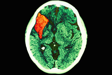 Stroke: cognitive problems can have a significant impact on recovery
