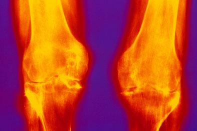 Rheumatoid arthritis: cost of pharmacological management is rising