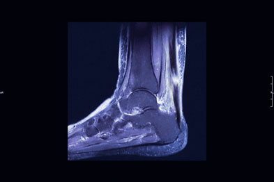 Achilles tendon rupture is an uncommon side-effect