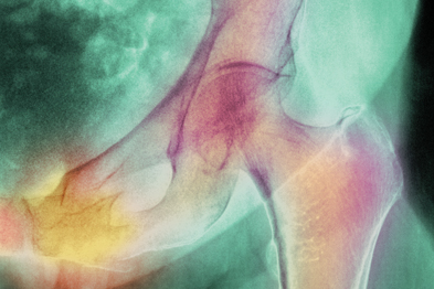 Type-2 maturity onset diabetes was shown to increase fracture risk (Photograph: SPL)