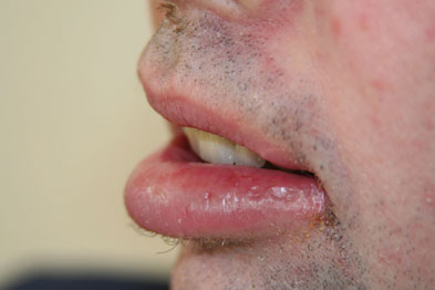 Chronic swelling of the lip