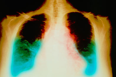 Patients at risk of heart failure can be identified using BNP testing (Photograph: SPL)