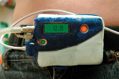 Ambulatory BP monitor: improves hypertension diagnosis (Photograph: SPL)