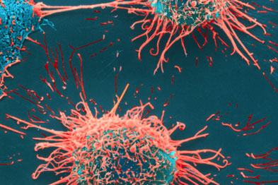 Cervical cancer is associated with low socioeconomic status and low education levels