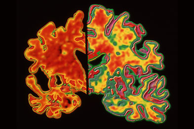 Alzheimer's: genetic link shown