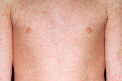 Measles rash on a 10 year old boy's upper body (SPL)