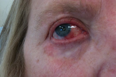 Blepharitis may be due to MGD