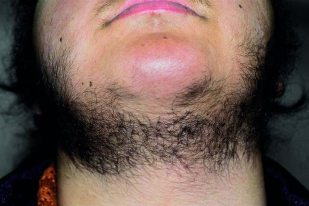Hirsutism is more common in dark-haired women (Photograph: SPL)