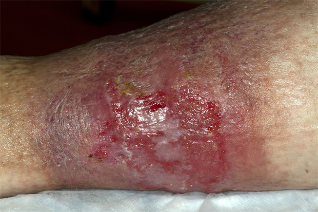 Venous ulcers are thought to be caused by improperly functioning venous valves (SPL)