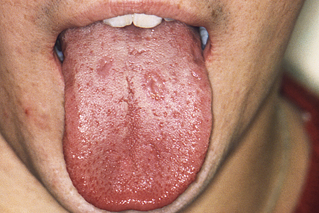 The mouth of a patient with syphilis, showing signs of the secondary stage of the disease