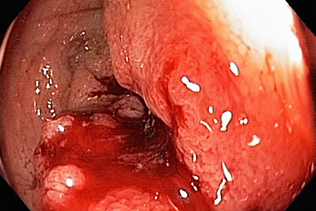Rectal cancer is a cause of acute lower gastrointestinal bleeding (Photograph: SPL)