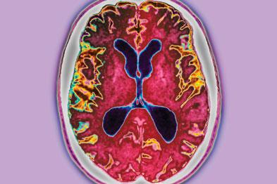 Alzheimer's disease: jab could block build-up of amyloid plaques (Photograph: SPL)
