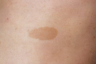 Cafe au lait skin spot in neurofibromatosis (Photograph: SPL)