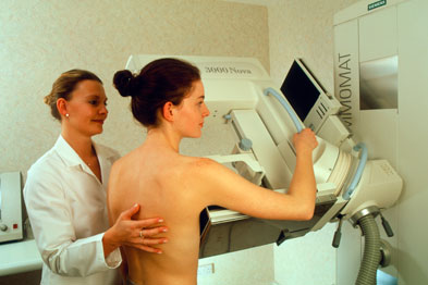 Breast lumps in women over 20 is a predictive measurement of cancer (Photograph: SPL)