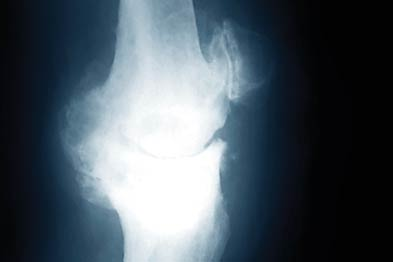 Studies failed to show glucosamine improved pain in osteoarthritis (Photograph: SPL)