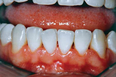 Inflamed gums may indicate a serious underlying disorder (Photograph: SPL)