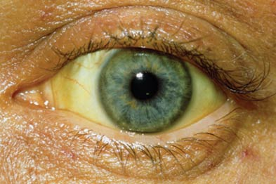 It may be easier to identify jaundice in the sclera than in the skin (Photograph: SPL)