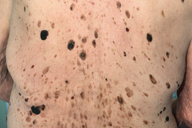 Seborrhoeic keratoses: currettage and cryotherapy are both effective