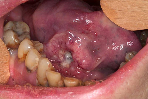 Carcinoma of the right tongue