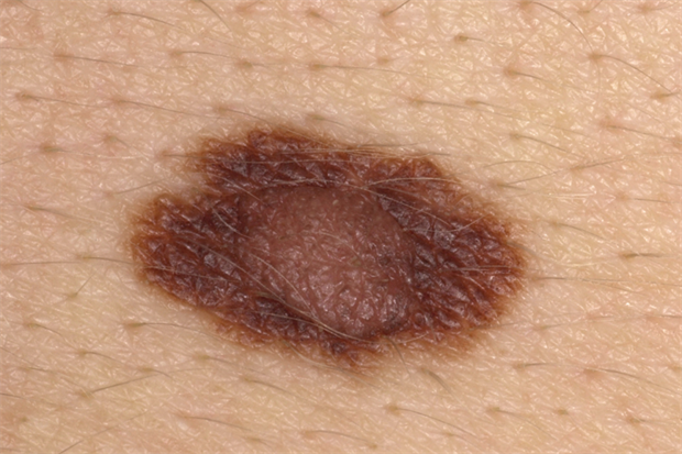 Differential diagnoses - Pigmented skin lesions | GPonline