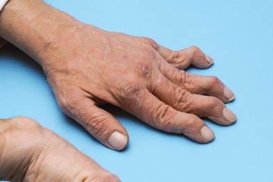 Rheumatoid arthritis: high cost (Photograph: SPL)