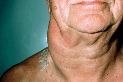 Lymphadenopathy is one of the most common presenting symptoms (Photograph: SPL)