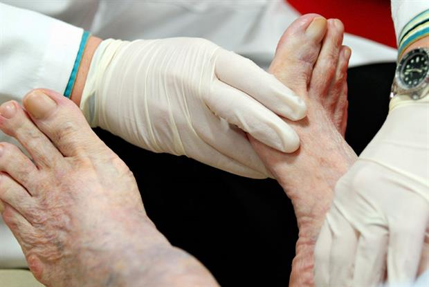 Foot examination: GPs face a large composite indicator for diabetes (Photo: iStock)