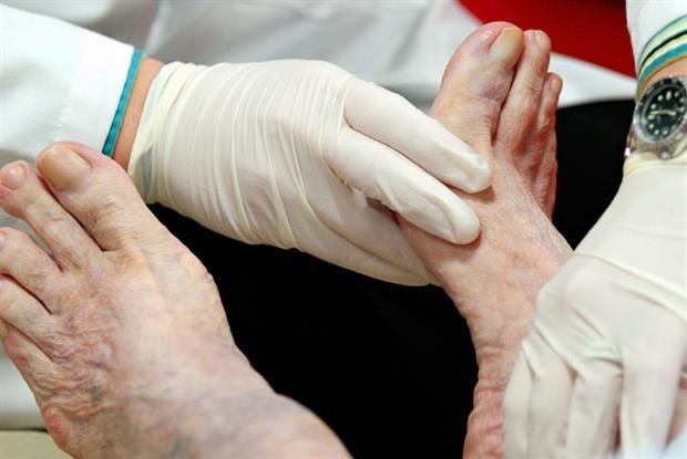 Foot examination: QOF measure to bundle diabetes checks opposed by GPs (Photo: iStock)