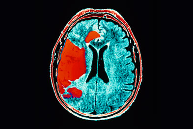 Stroke: women's quality of life affected more than men's (Photo: Science Photo Library)