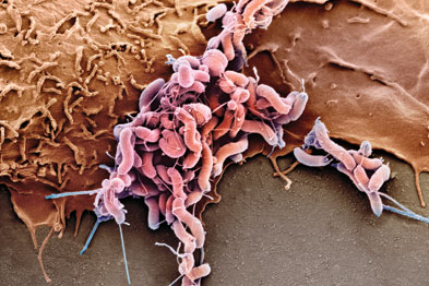 H pylori infection protected mice from allergen induced asthma (Photograph: SPL)